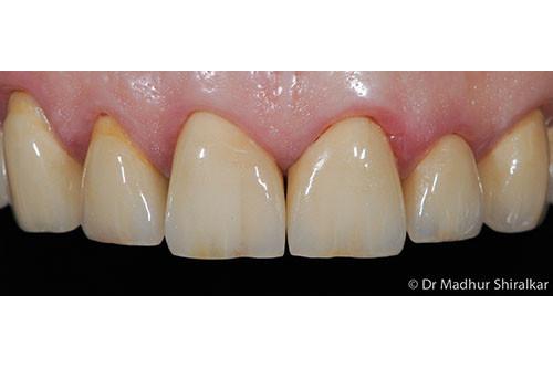 Rebuilding the Worn Down Teeth with Premium Crowns