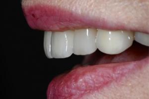 Proper Teeth