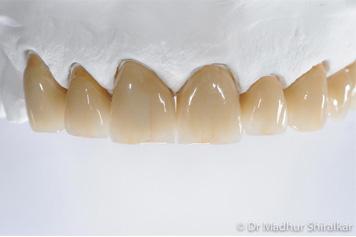 Porcelain Crowns
