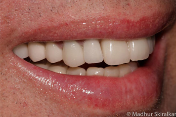 Teeth Replacement Treatment - 1