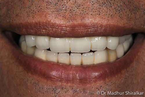 Complex oral Rehabilatation crown bridges and fooooour Implants