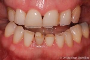 Mising Teeth