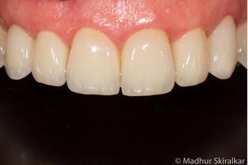 complex dentistry problem