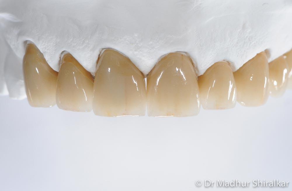 CBHS Preferred Dentist