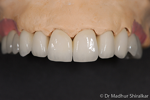 MaryO-07-Complex Reconstruction for Worn and Missing Teeth