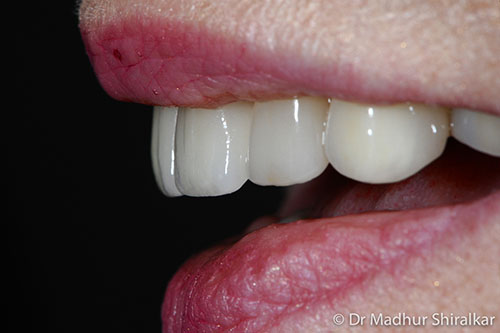 Rebuilding and Cosmetic improvement of the Worn Smile