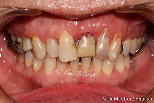 Restoring broken down Upper Teeth with All Porcelain Crowns and Bridge