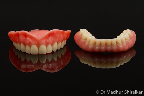 Premium Aesthetic Upper Denture and Lower Implant Denture