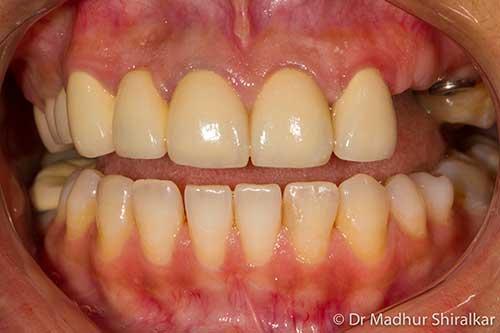 Bone Grafting and Implant Bridge for three teeth