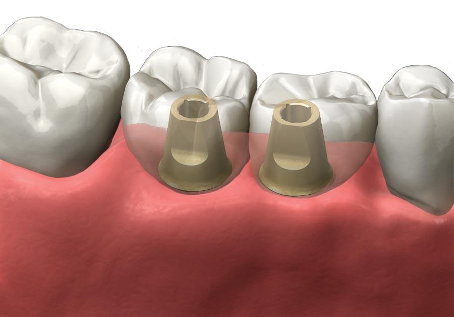 Multiple Implants