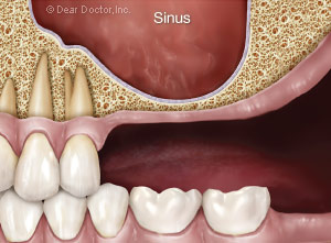 Sinus Graft