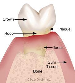 Gum Treatment