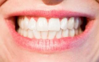 Mini-Dental-Implants