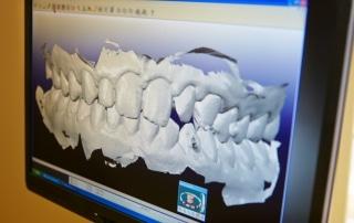 Section cut off of upper dental impression.