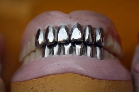 metal-teeth-2431035_640